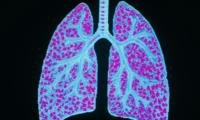 淋巴细胞性间质性肺炎知多少